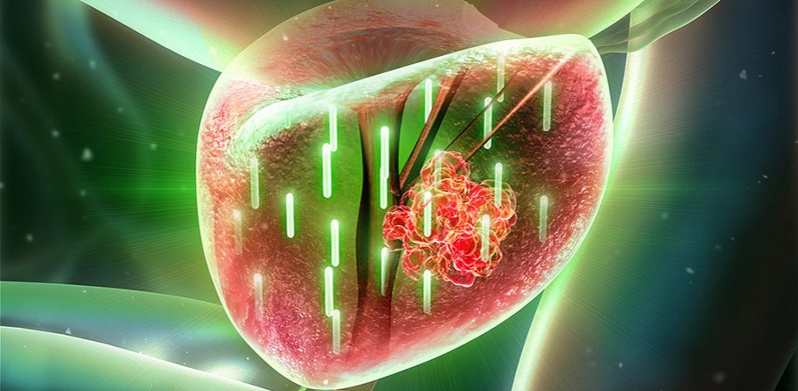 Targeting Metabolism to Develop New Prostate Cancer Treatments